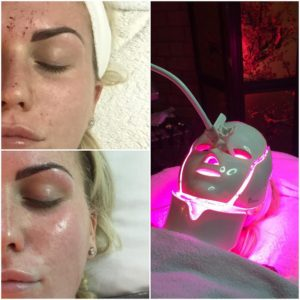 Sorry, that led light facial with